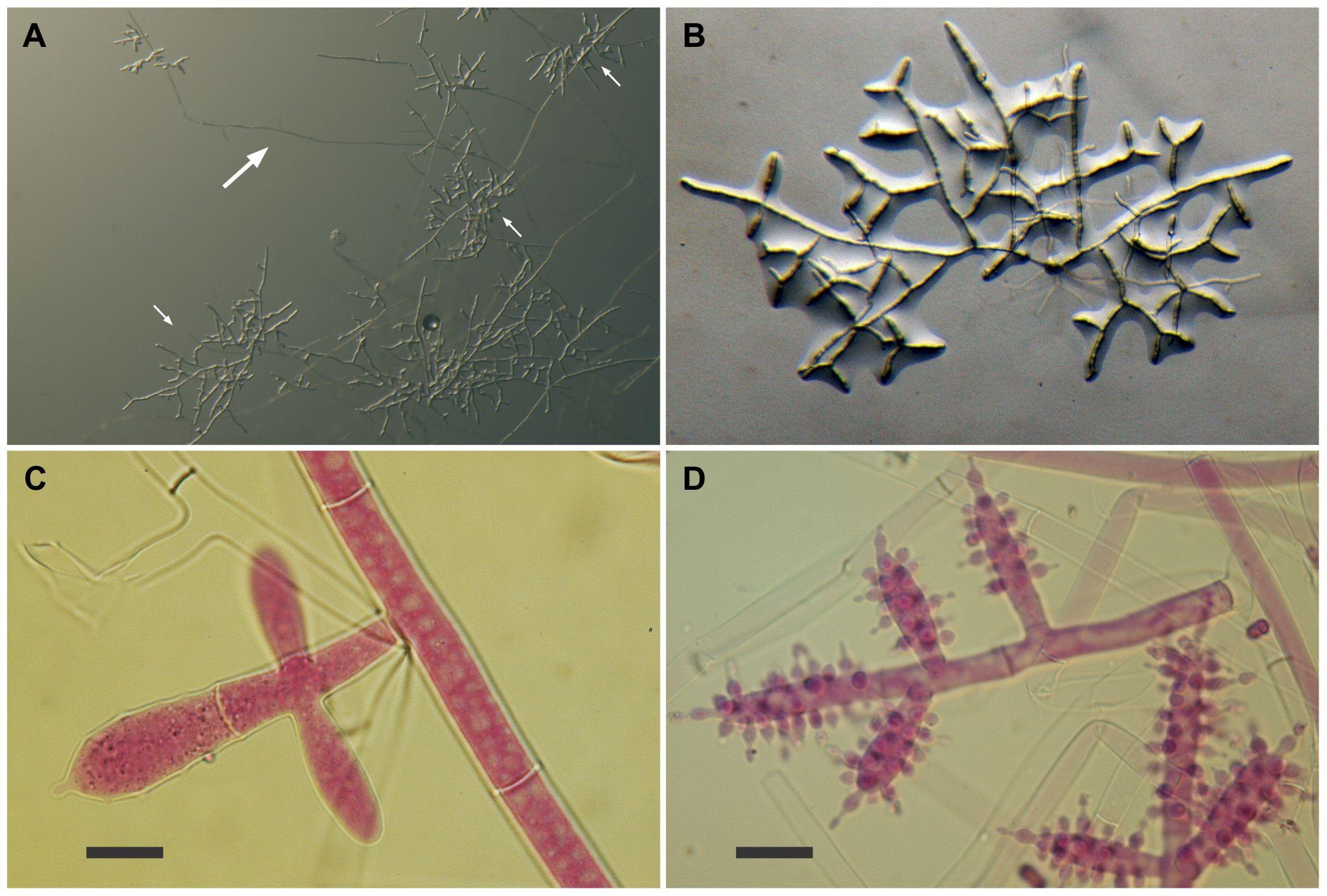 Escovopsis moelleri.0082265.g002