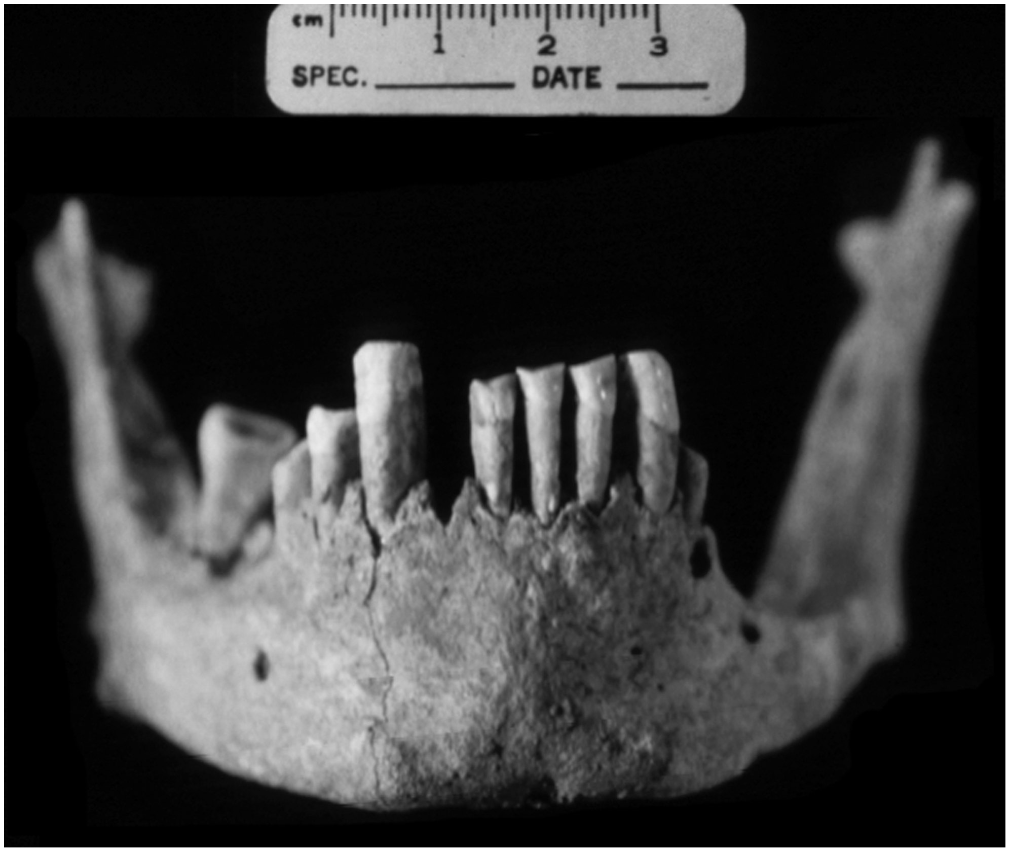 Anterior view of the mandible